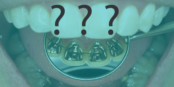 sorularla_ortodonti