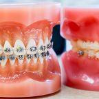 yetişkinlerde_ortodontik_tedavi